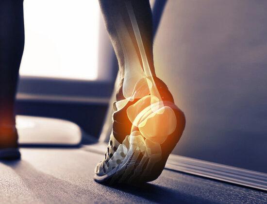 Analisi del piede e della postura